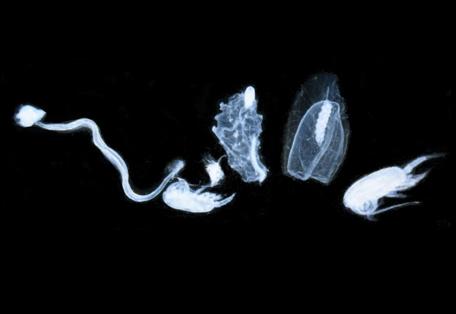 starecapmed-diversité-zooplanctonique-resized